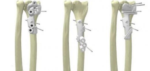 手术导板三维效果图