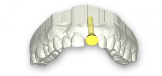 dental_4