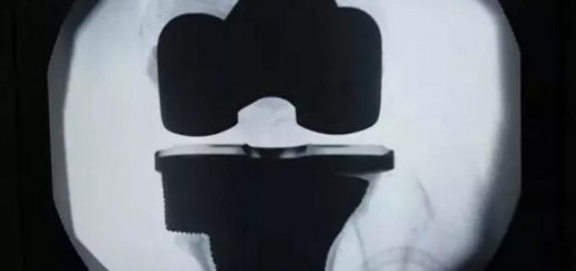zhuzhou additive printing_implant_surgery