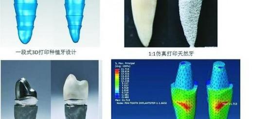 Peking university dental hospital implant