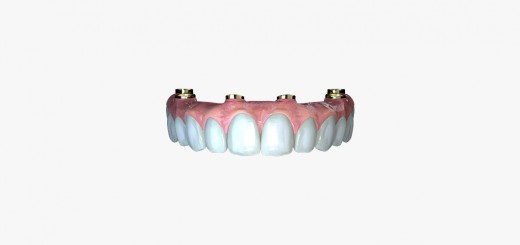 Evo_full jaw implant