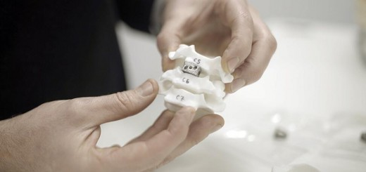 Spinal implant_Renishaw