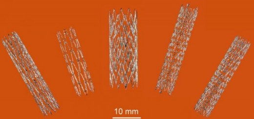 Part_self-expanding-nitinol-stents_SLM_CSIRO