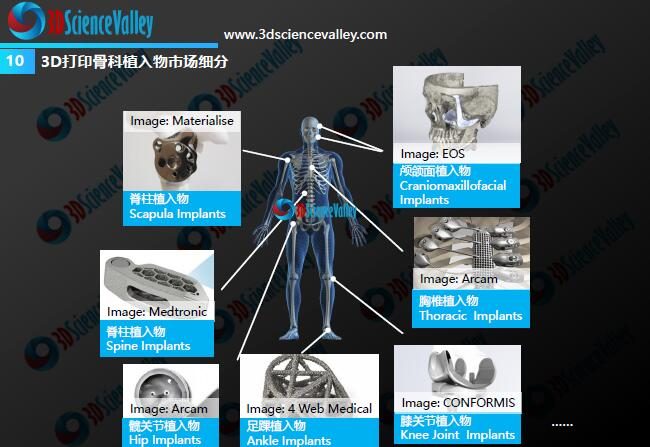 Whitepaper_Orthopedic Implant_10