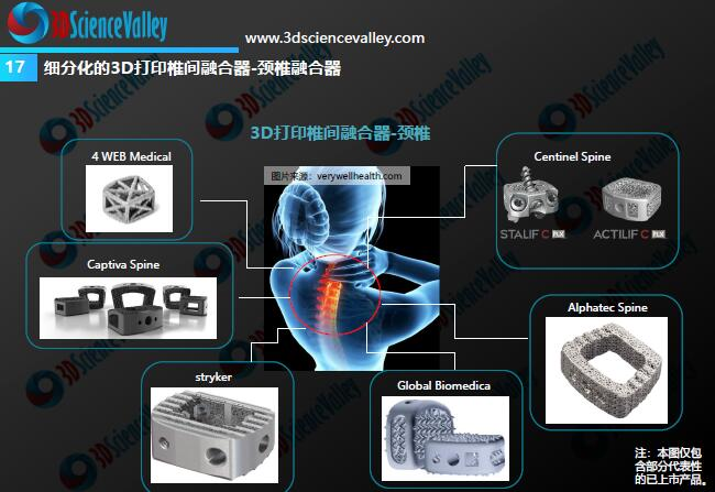 Whitepaper_Orthopedic Implant_17