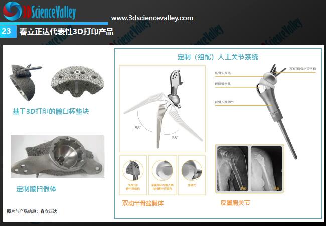 Whitepaper_Orthopedic Implant_23